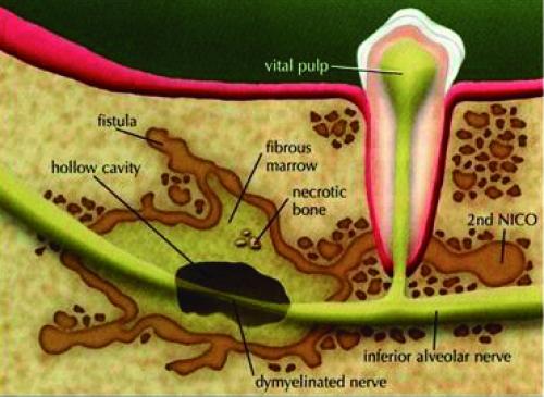 NEURALGIA-INDUCING CAVITATIONAL OSTEONECROSIS